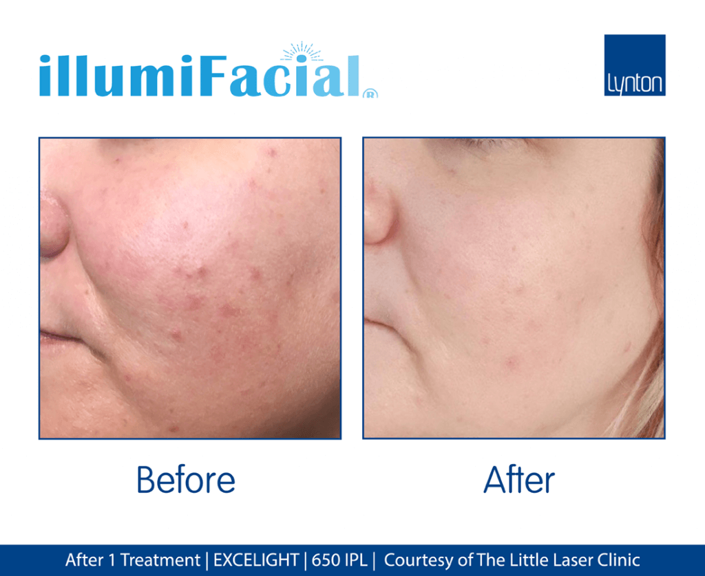 illumiFacial-After-1-Treatment-The-Little-Laser-Clinic